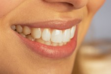 Dental Designs of Roseville